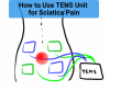 How to Use TENS Unit for Sciatica Pain