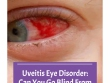 Uveitis Eye Disorder  Can You Go Blind From Uveitis
